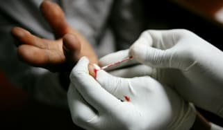 A traditional HIV test