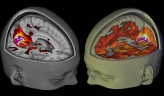 The effect of LSD on the brain