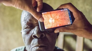Laureate Andrew Bastawroususes the Peek device to examinea Kenyan woman suffering fromblindness.