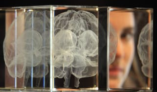AI Alzheimer's