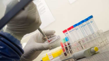 Infectious disease specialist conducts blood tests for Ebola