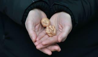 wd-abortion.jpg