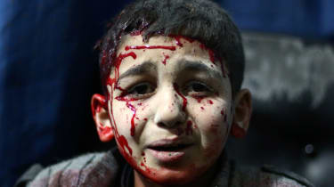 An injured Syrian child waits for treatment at a makeshift hospital in the rebel held area of Douma, north east of the capital Damascus, following reported air strikes by forces loyal to Pres