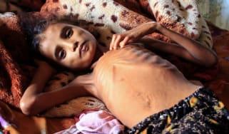 Starving Yemeni child